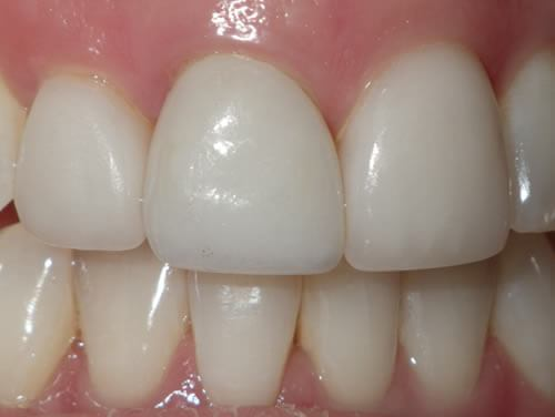Tooth Replacement After